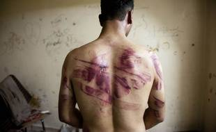 Un Syrien torturé par les forces de sécurité, sur une photo du 23 août 2012, à Alep.