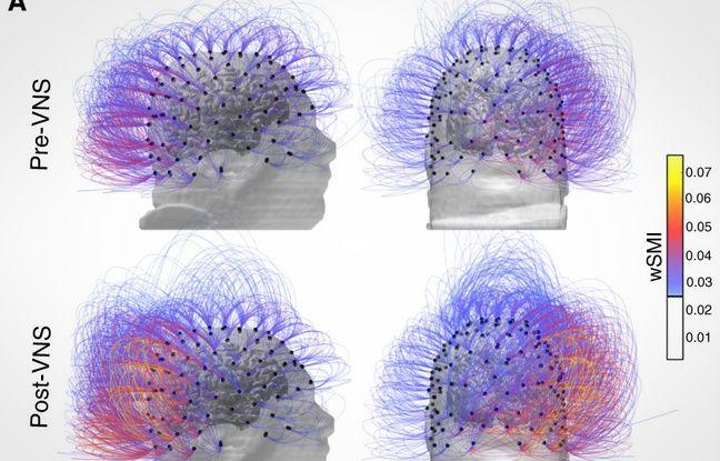 L'activité cérébrale du patient avant (en haut) et après la stimulation nerveuse.