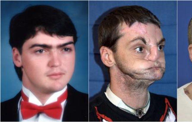 Richard Norris, avant le coup de feu qui l'a défiguré, et après sa greffe du visage en mars 2012.
