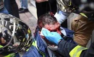 Ce pompier volontaire, manifestant blessé à Bordeaux lors de la mobilisation des gilets jaunes le 12 janvier dernier, a été plongé depuis dans un coma artificiel.