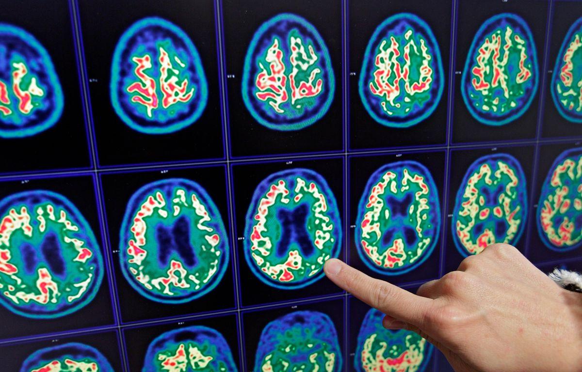 Tep Scan du cerveau d'un patient atteint de la maladie d'Alzheimer. – M.Libert / 20 Minutes