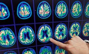 Tep Scan du cerveau d'un patient atteint de la maladie d'Alzheimer.