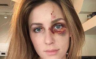 Melissa Gentz a décidé de dénoncer les violences de son compagnon en postant une photo de son visage sur Instagram.