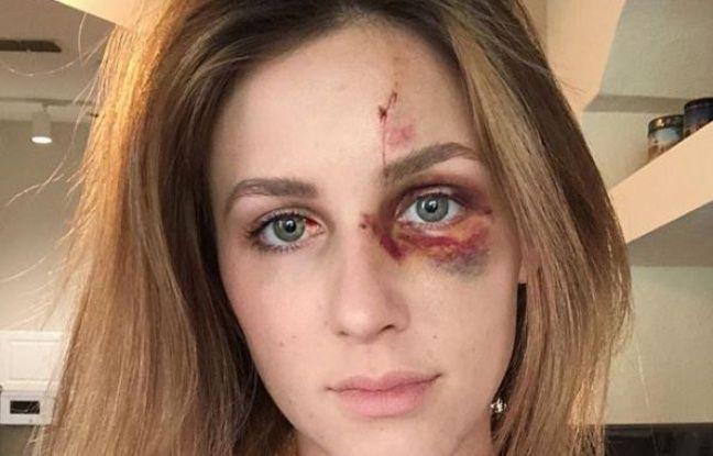 Brésil: Frappée par son compagnon, elle poste sur Instagram la photo de son visage tuméfié