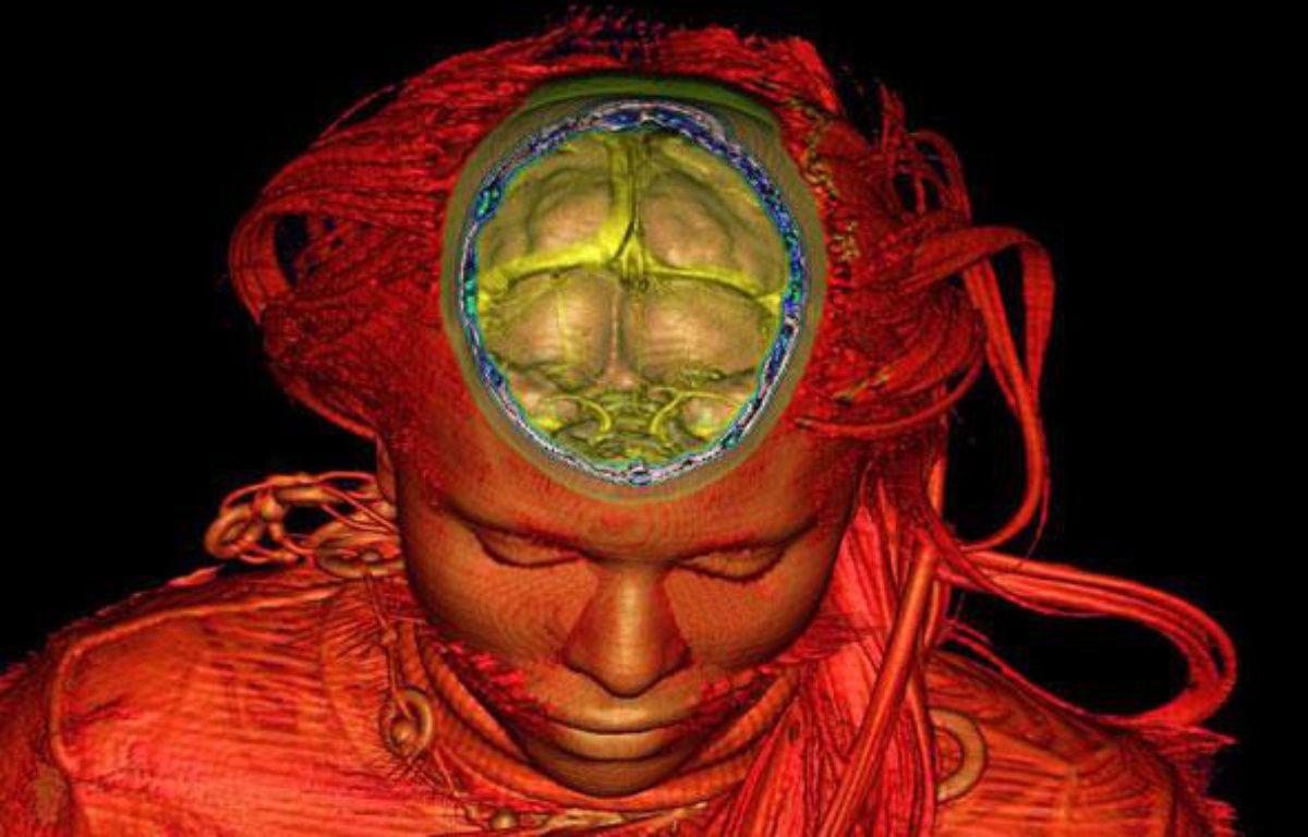 Le cerveau et l'intérieur d'un crane visualisés grâce à l'imagerie par résonnance magnétique. – GOMBERGH/SIPA