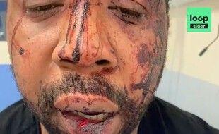 Un producteur de musique a été passé à tabac par trois policiers, dans le 17e arrondissement de Paris