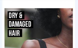 Une chaîne de pharmacies a provoqué une vague d'indignation en affichant sur son site Web des images décrivant les cheveux des Noirs