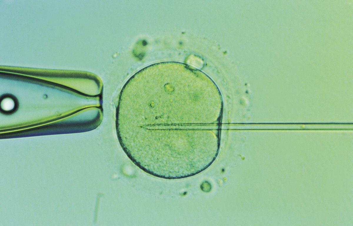 Fécondation in vitro (illustration). – SUPERSTOCK/SIPA