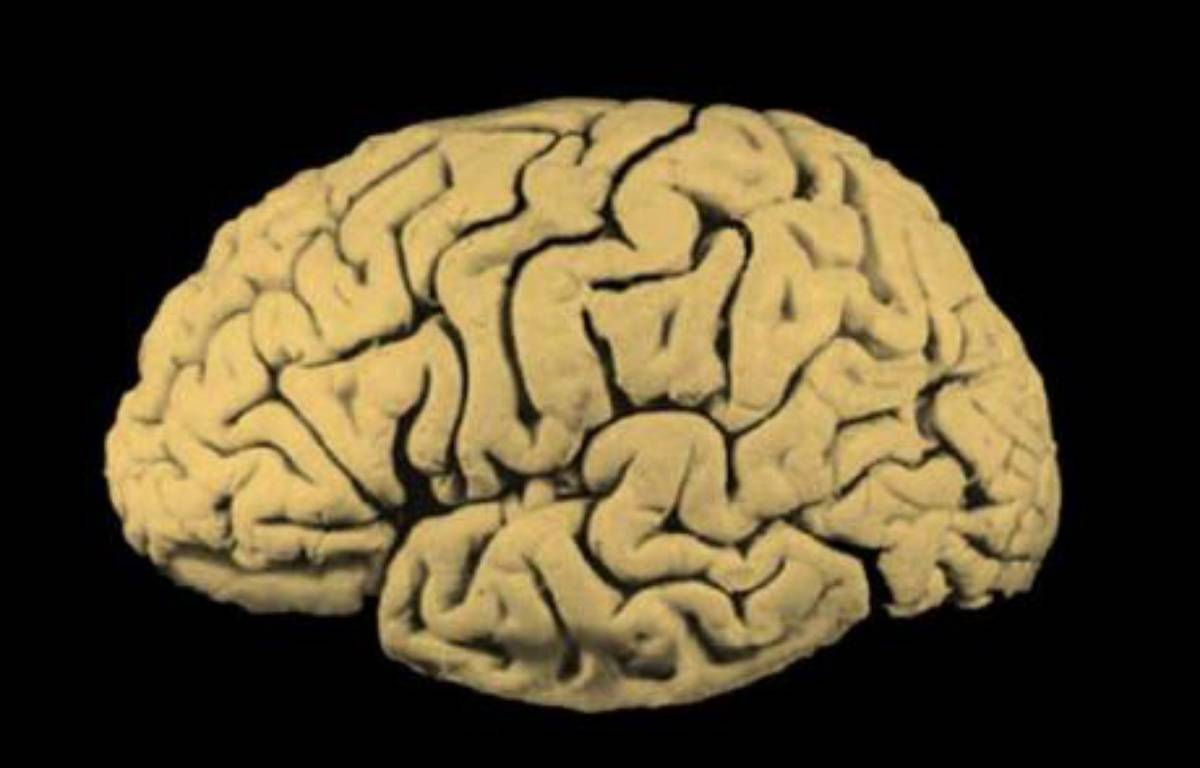 Une coupe latérale d'un cerveau – DR