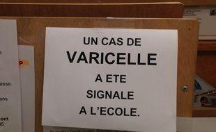 Affichette annonçant un cas de varicelle dans une école strasbourgeoise. (Photo archives)