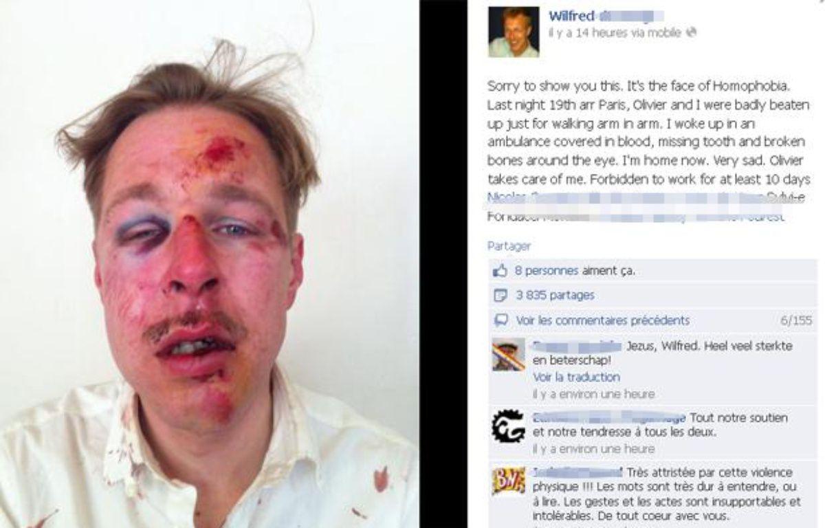 La photo du visage de Wilfred, publiée sur Facebook le lendemain de l'agression dont il a été victime avec son compagnon, dans la nuit du samedi 6 au dimanche 7 avril à Paris – Capture Facebook