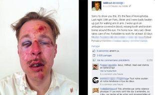 La photo du visage de Wilfred, publiée sur Facebook le lendemain de l'agression dont il a été victime avec son compagnon, dans la nuit du samedi 6 au dimanche 7 avril à Paris