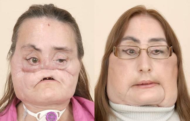 Connie Culp, avant et après sa greffe de visage.