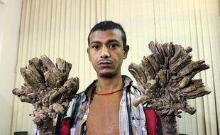 """Abul Bajandar, surnommé """"l'homme-arbre"""", va subir une opération pour être débarrassé des excroissances provoquées par sa maladie génétique rarissime."""