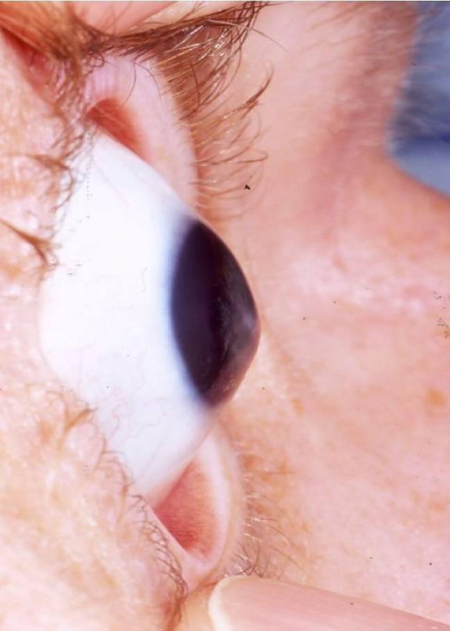 Le kératocône est une maladie qui provoque la déformation de la cornée. Le patient a besoin d'une greffe pour recouvrer la vue.