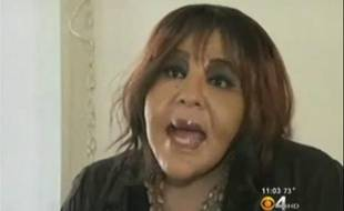 Rajee Narinesingh, une des victimes du «docteur» Morris, un faux chirurgien esthétique, sur la chaîne américaine CBS, le 30 novembre 2011.