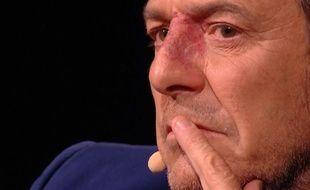 Jean-Luc Reichmann dans «La Chanson secrète» sur TF1