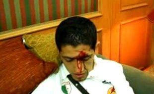 Capture d'écran d'une vidéo d'un joueur algérien blessé lors de l'attaque du bus de la sélection nationale au caire, le 12 novembre 2009.