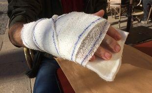 Marien, 27 ans, a une double fracture à la main droite après un tir de lanceur de balle de défense par un CRS.