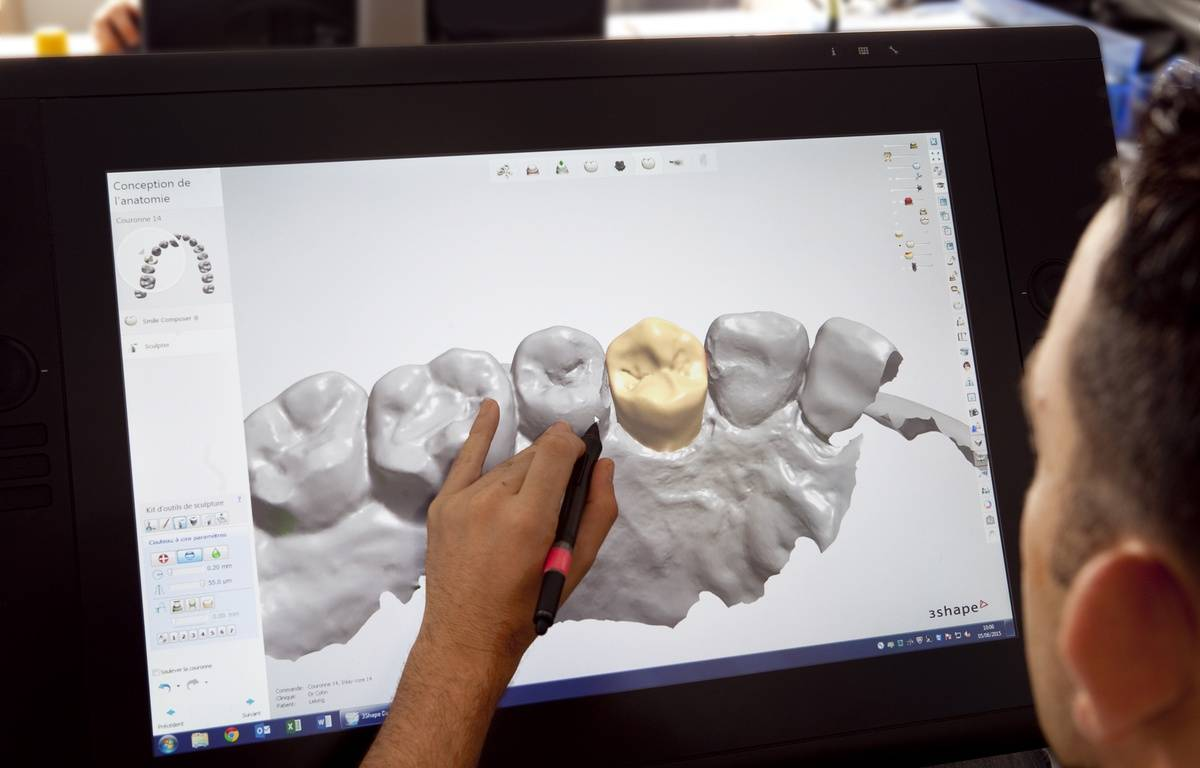 La conception assisté par ordinateur arrive dans les cabinet dentaires. – Lyra