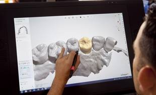 La conception assisté par ordinateur arrive dans les cabinet dentaires.