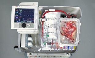 Cette machine permet de laisser l'organe «travailler».