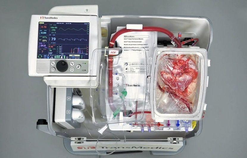 Lille: Le Centre hospitalier innove en transplantant un cœur «vivant»