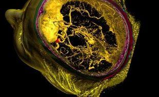 Un anevrisme du cerveau vu par angioscanner.