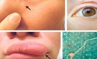 Une Russe a découvert qu'un ver se promenait sous la peau de son visage.