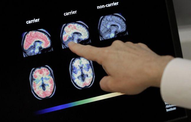Sur cette photo, le Dr William Burke dévoile un pet scan du cerveau d'un patient atteint d'Alzheimer à Phoenix.