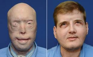 Le greffé du visage Patrick Hardison avant son opération, en 2014 et un an après, en août 2016.