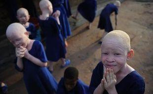 Des enfants albinos sont recueillis dans une école en Tanzanie, le 25 janvier 2009