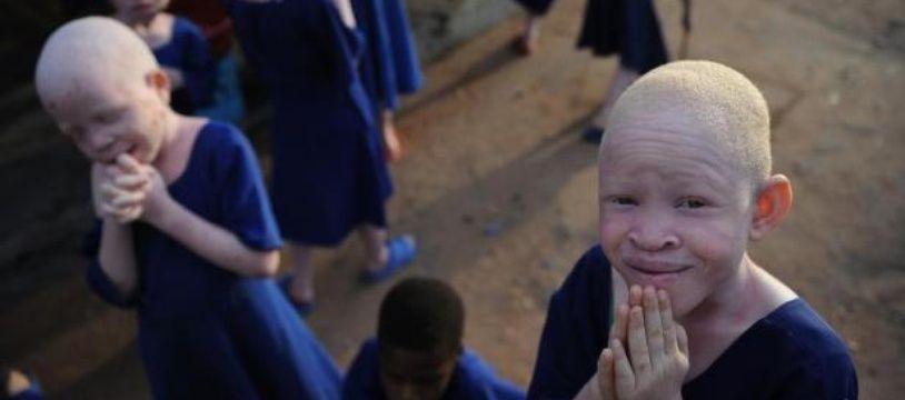 Des enfants albinos dans une école en Tanzanie, le 25 janvier 2009.