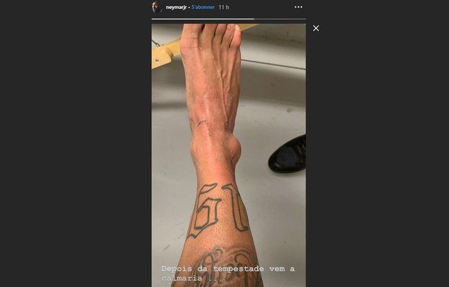 Neymar montre sa cheville blessée sur son compte Instagram.
