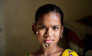 Sahana Khatun, dix ans, présente bien les répugnantes excroissances géantes caractéristiques de l'épidermodysplasie verruciforme.