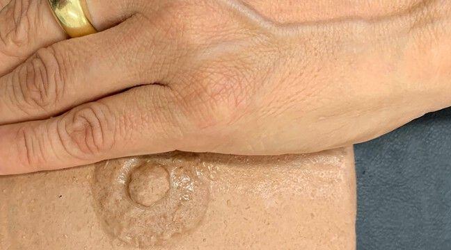 Cancer du sein : Des prothèses personnalisées (voire sexy), l'idée évidente pour un bien-être après la maladie - 20 Minutes