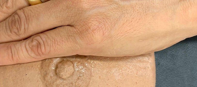La prothèse mammaire externe sur laquelle le CHU de Toulouse lance son essai clinique reproduit la couleur de la peau de la patiente.