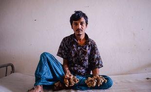 Abul Bajandar , 28 ans, surnommé l'homme arbre.