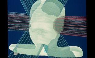 La radiothérapie fait partie de l'arsenal pour lutter contre le cancer du cerveau. Illustration.