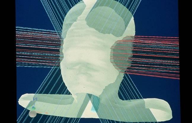 Toulouse: Des chercheurs s'attaquent à la «face nord» du cancer du cerveau pour empêcher la récidive